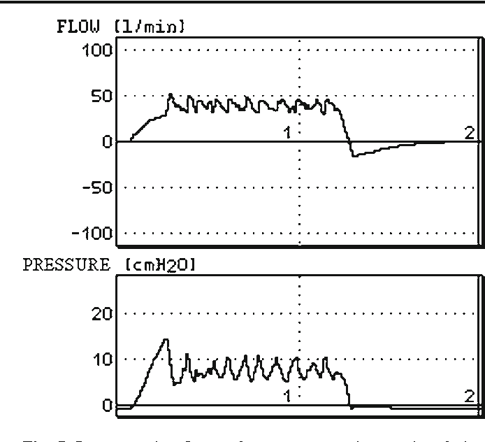 Figure 7 from Evaluation of pressure-controlled ventilation