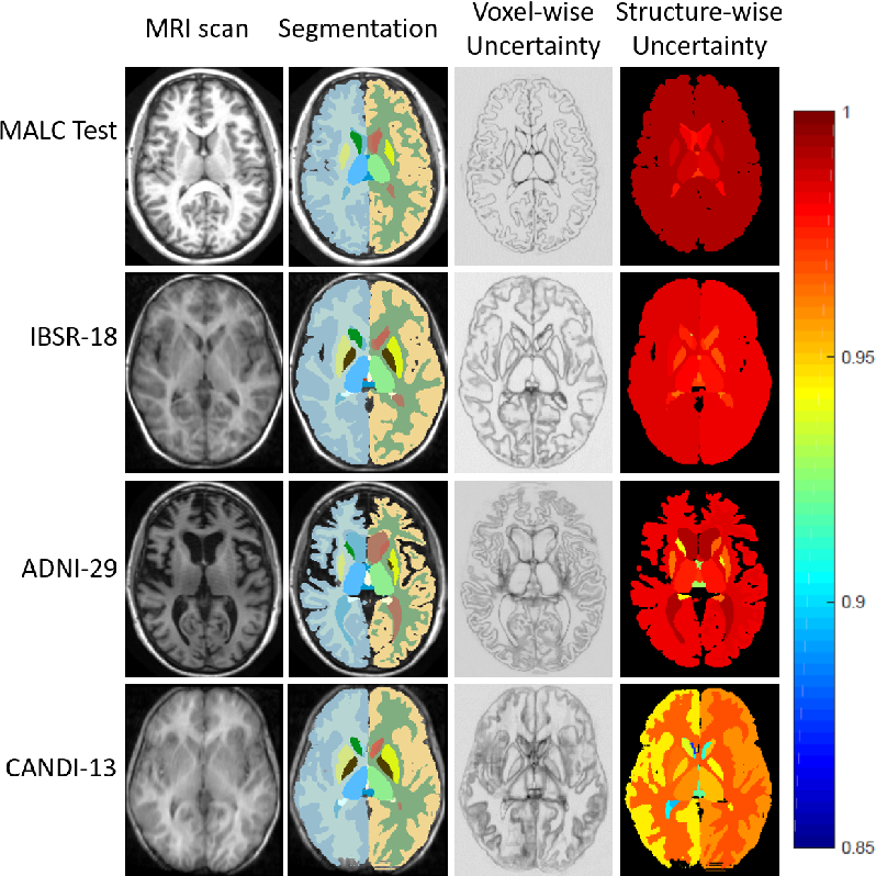 Figure 4 for Inherent Brain Segmentation Quality Control from Fully ConvNet Monte Carlo Sampling