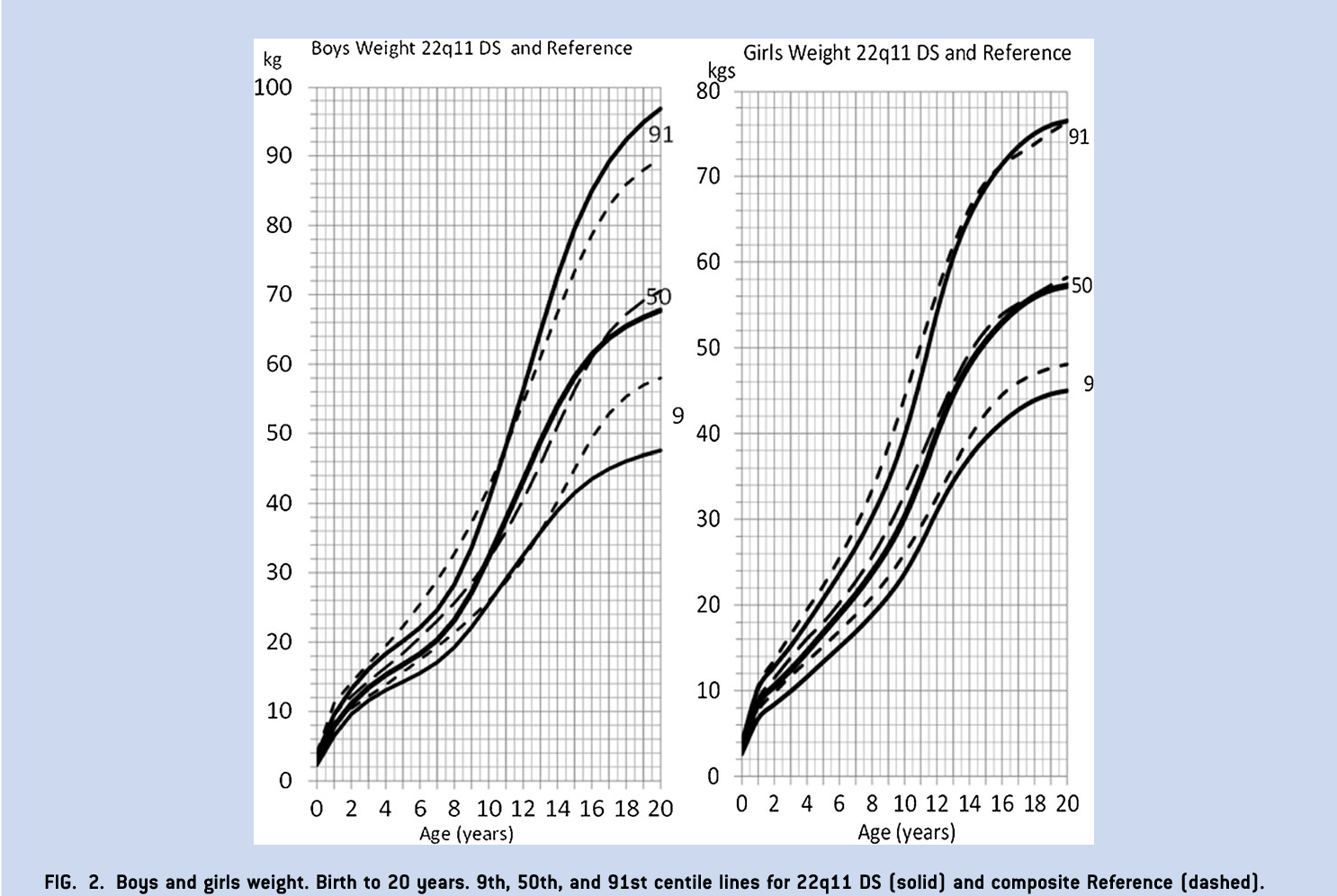 Figure 2 From Syndrome Specific Growth Charts For 22q112 Deletion