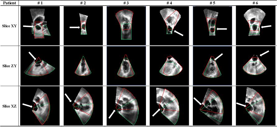 Figure 4 for Direct Simultaneous Multi-Image Registration