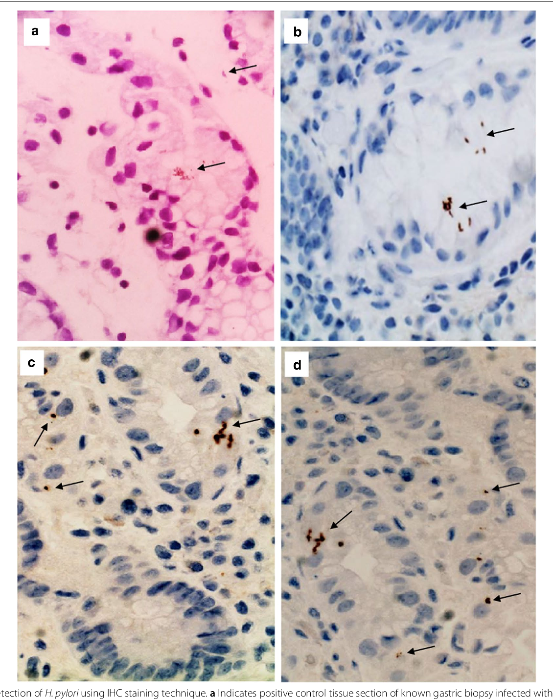 Prevalence Of Helicobacter Pylori Among Sudanese Patients Diagnosed With Colon Polyps And Colon Cancer Using Immunohistochemistry Technique Semantic Scholar