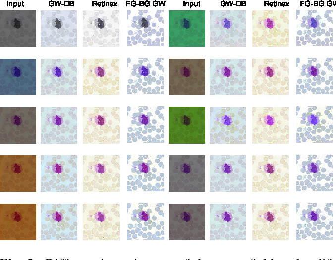 Figure 2 for Adaptive Gray World-Based Color Normalization of Thin Blood Film Images