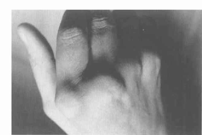 FIG. 3. Pathologic descent to palmar of the fourth and fifth metacarpal head with the fist.
