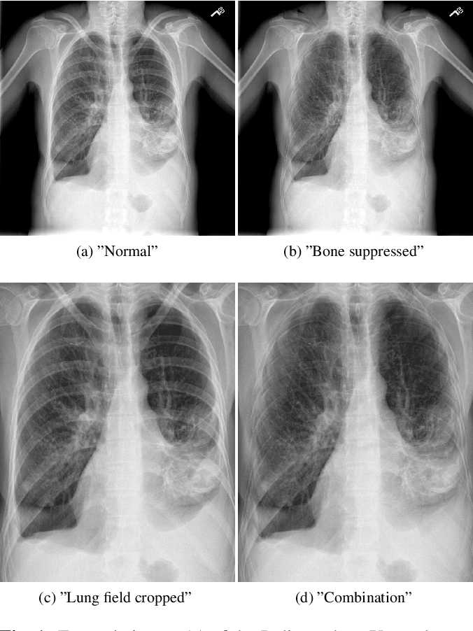 Figure 1 for When does Bone Suppression and Lung Field Segmentation Improve Chest X-Ray Disease Classification?