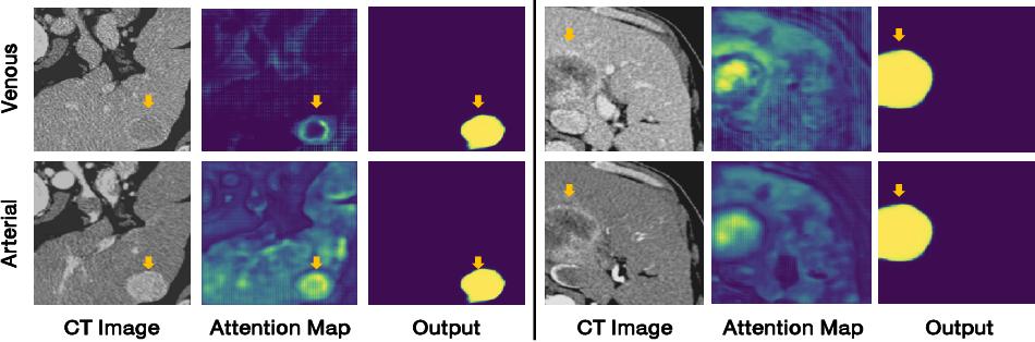 Figure 4 for Modality-aware Mutual Learning for Multi-modal Medical Image Segmentation