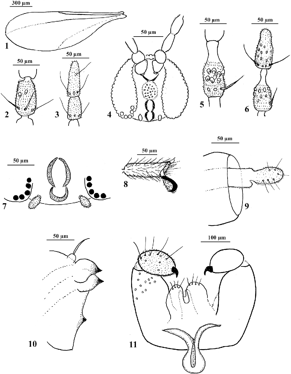 figure 1–11