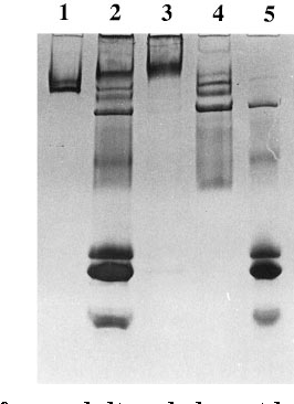 FIG. 1. Proteins from adult male locust hemolymph present in stages of JHBP purification, visualized by Coomassie Blue staining after nondenaturing PAGE (4–15% acrylamide gradient). Lane 1, purified JHBP after heparin-agarose chromatography (5 mg); 2, crude hemolymph (25 mg); 3, 5% PEG pellet (10 mg); 4, 10% PEG pellet (10 mg); 5, 10% PEG supernatant (10 mg).