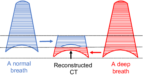 Figure 2 for Geodesic Density Regression for Correcting 4DCT Pulmonary Respiratory Motion Artifacts