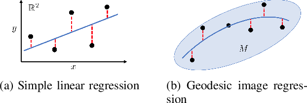 Figure 3 for Geodesic Density Regression for Correcting 4DCT Pulmonary Respiratory Motion Artifacts