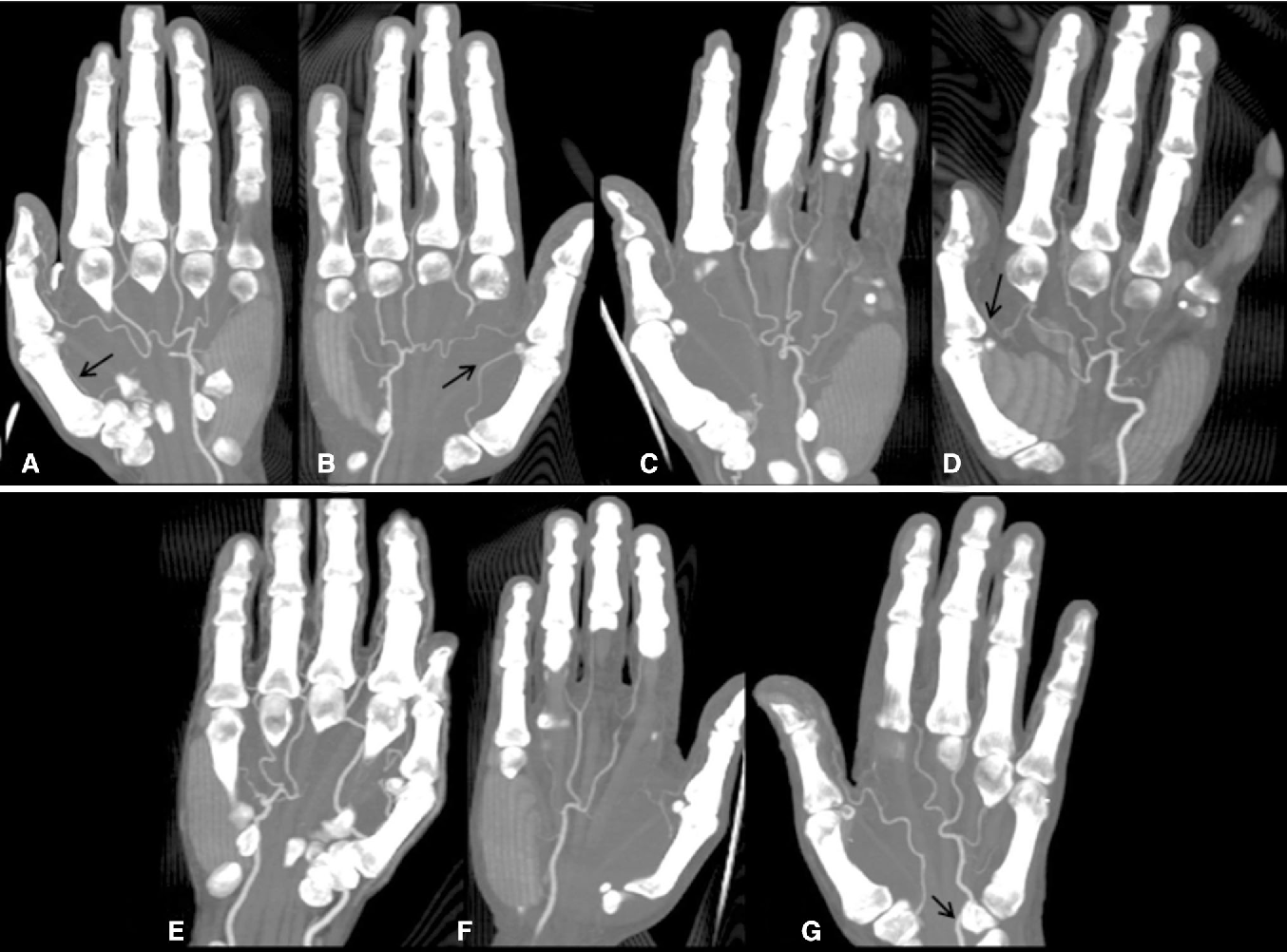 Evaluation of anatomy and variations of superficial palmar arch and ...