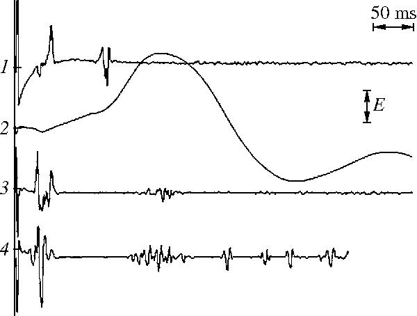 Figure 1 from Patellar reflex: III  Comparison of reflexes in the