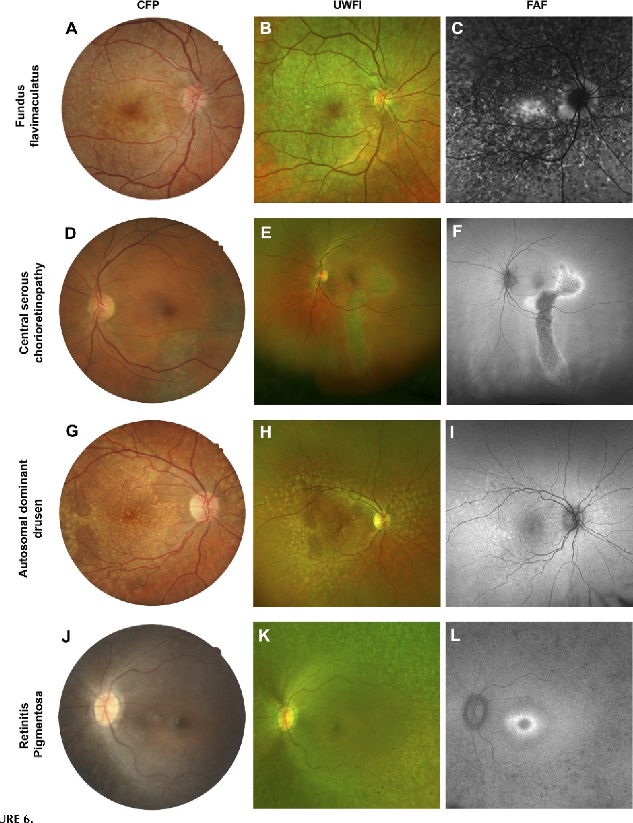 PDF] Fundus Autofluorescence in Age-related Macular