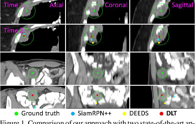 Figure 1 for Deep Lesion Tracker: Monitoring Lesions in 4D Longitudinal Imaging Studies