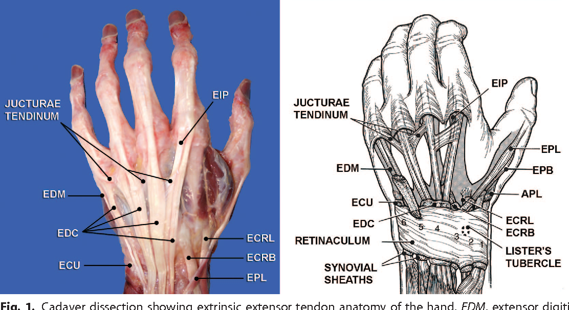 Figure 1 from CME Extensor Tendon Injuries : Acute Management and ...