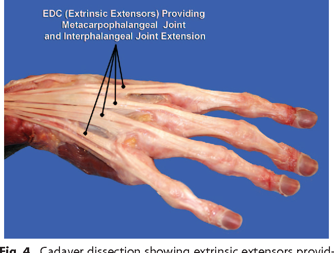 Figure 4 from CME Extensor Tendon Injuries : Acute Management and ...