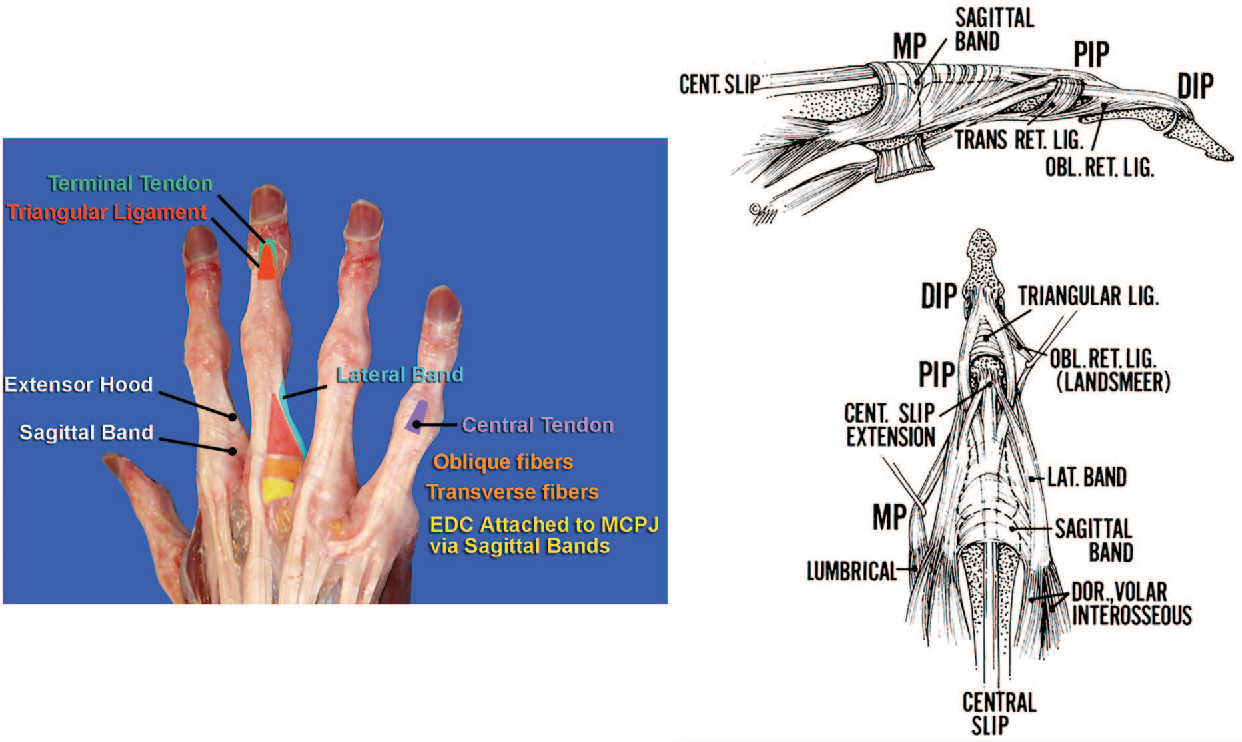 Figure 6 from CME Extensor Tendon Injuries : Acute Management and ...