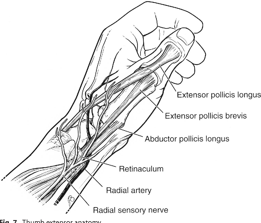 Figure 7 from CME Extensor Tendon Injuries : Acute Management and ...