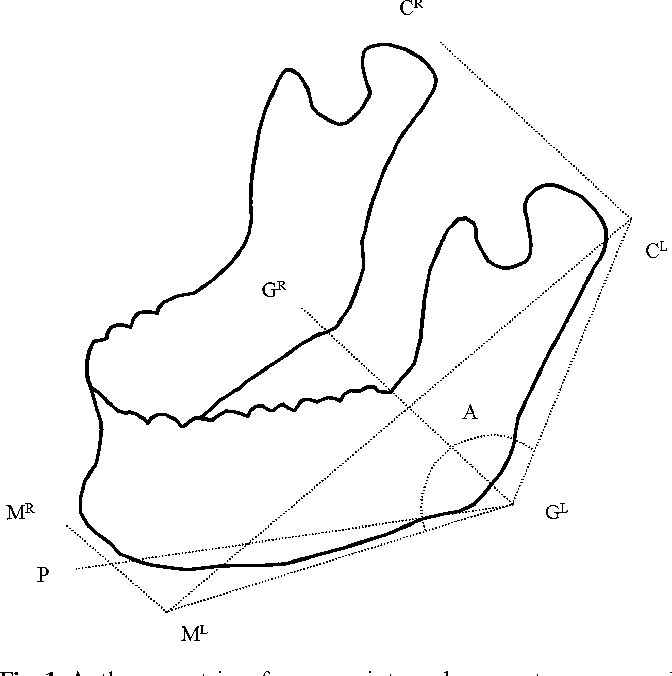 Determination Of Dimensions And Angles Of Mandible In The Fetal