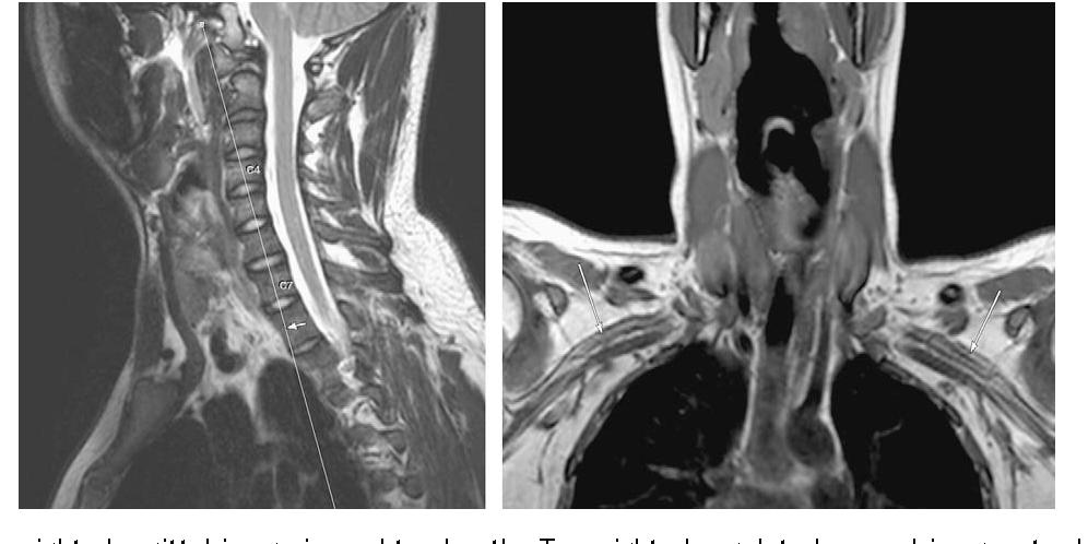 Figure 1 from MRI of brachial plexopathies. - Semantic Scholar