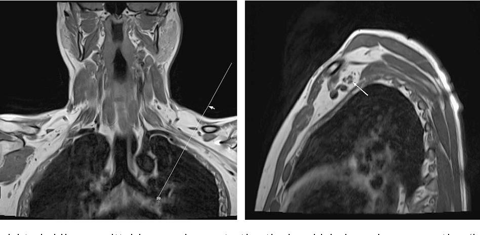 Figure 2 from MRI of brachial plexopathies. - Semantic Scholar