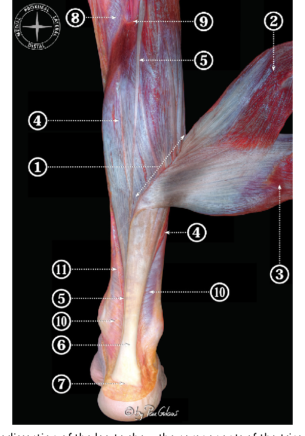 Figure 24 from Anatomy of the triceps surae: a pictorial essay ...