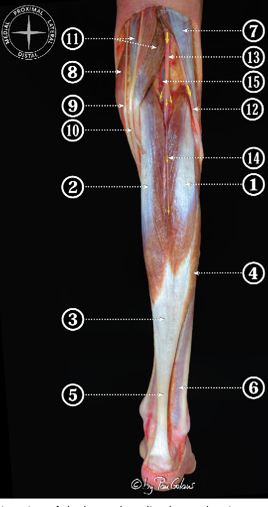 Figure 7 from Anatomy of the triceps surae: a pictorial essay ...