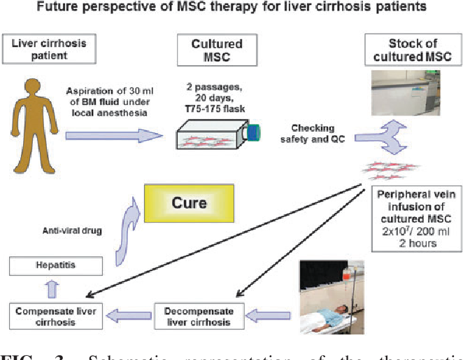 Status and prospects of liver cirrhosis treatment by using