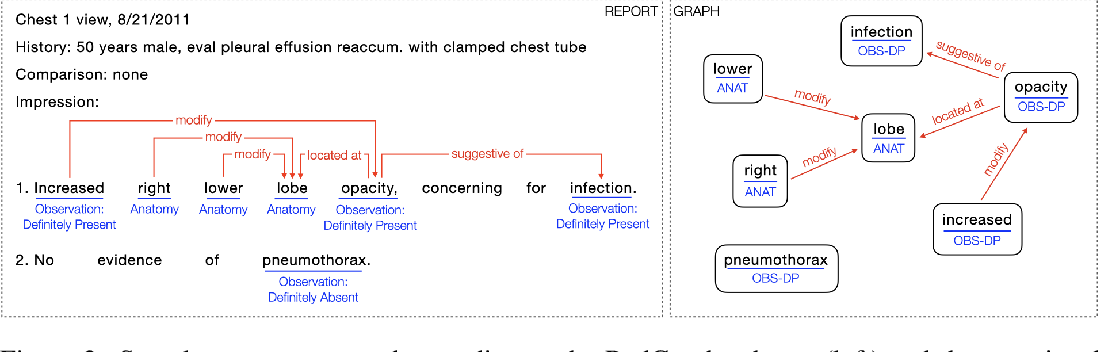 Figure 3 for RadGraph: Extracting Clinical Entities and Relations from Radiology Reports