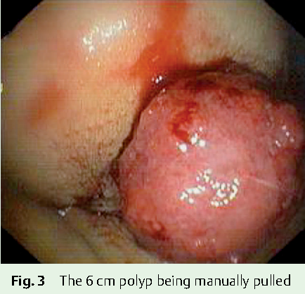 cold-biopsy-of-anal-canal