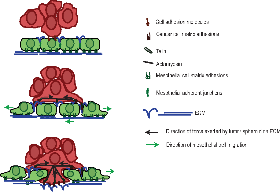 Figure 7 from Ovarian cancer spheroids use myosin-generated