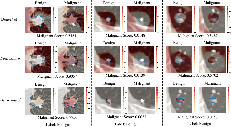 Figure 4 for Probabilistic Radiomics: Ambiguous Diagnosis with Controllable Shape Analysis
