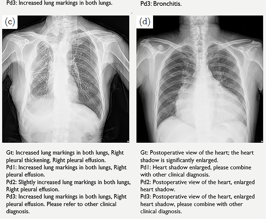 Figure 4 for Automated Radiological Report Generation For Chest X-Rays With Weakly-Supervised End-to-End Deep Learning