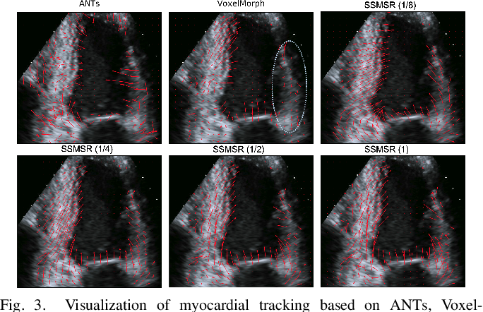 Figure 3 for Test-Time Training for Deformable Multi-Scale Image Registration