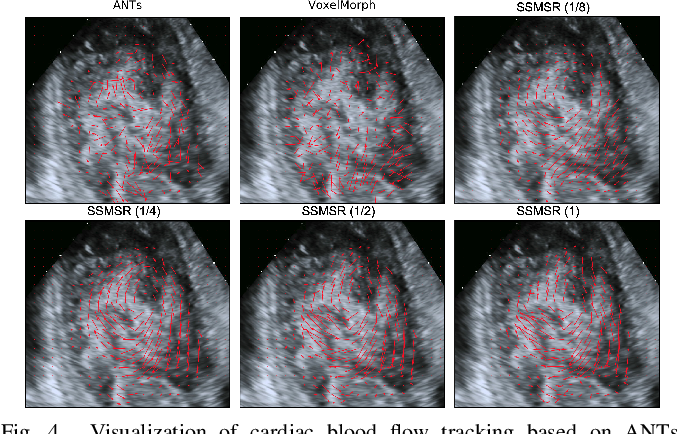 Figure 4 for Test-Time Training for Deformable Multi-Scale Image Registration