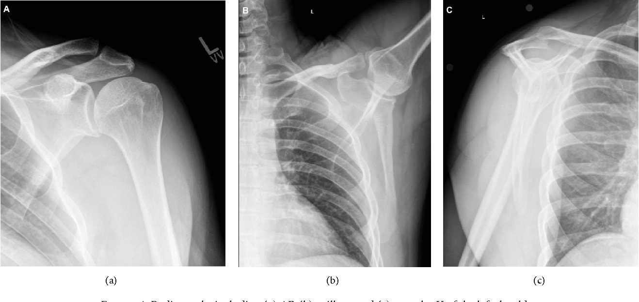 Scapulothoracic Anatomy and Snapping Scapula Syndrome - Semantic Scholar