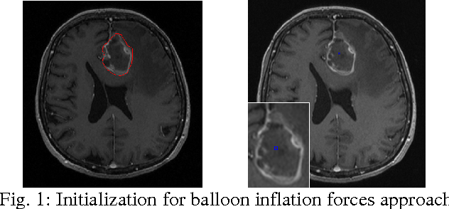Figure 1 for A Comparison of Two Human Brain Tumor Segmentation Methods for MRI Data