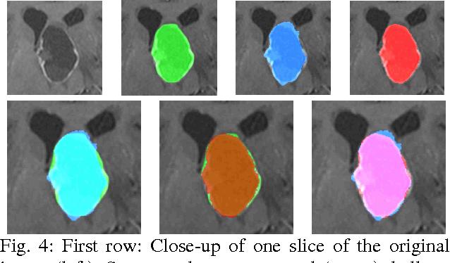 Figure 4 for A Comparison of Two Human Brain Tumor Segmentation Methods for MRI Data