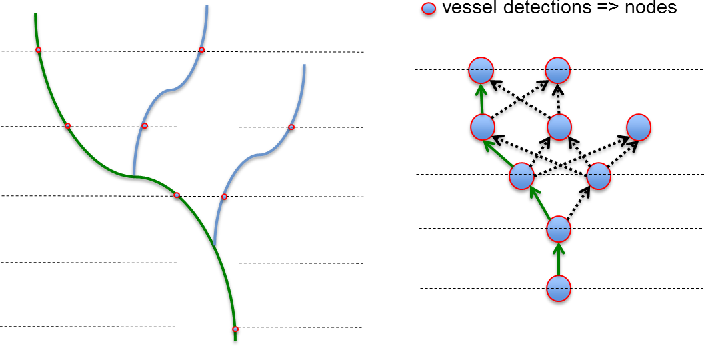 Figure 1 for Automatic tracking of vessel-like structures from a single starting point