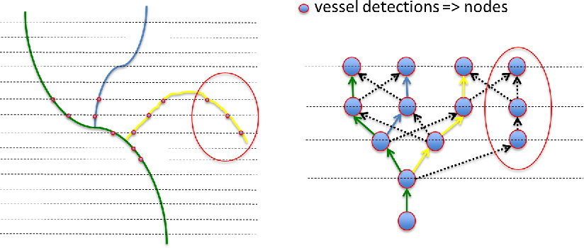Figure 3 for Automatic tracking of vessel-like structures from a single starting point