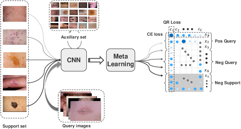Figure 1 for Alleviating the Incompatibility between Cross Entropy Loss and Episode Training for Few-shot Skin Disease Classification