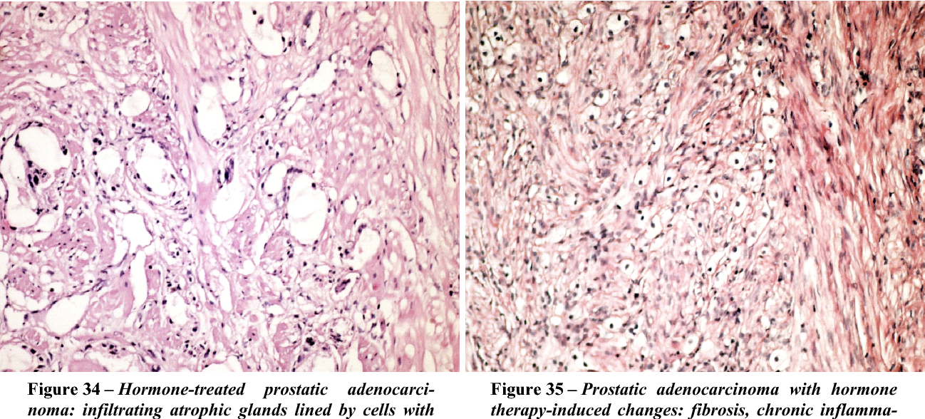 Figure 35 – Prostatic adenocarcinoma with hormone therapy-induced changes: fibrosis, chronic inflammatory infiltrate, cells with abundant clear cytoplasm, pyknotic nuclei. HE stain, ×200.