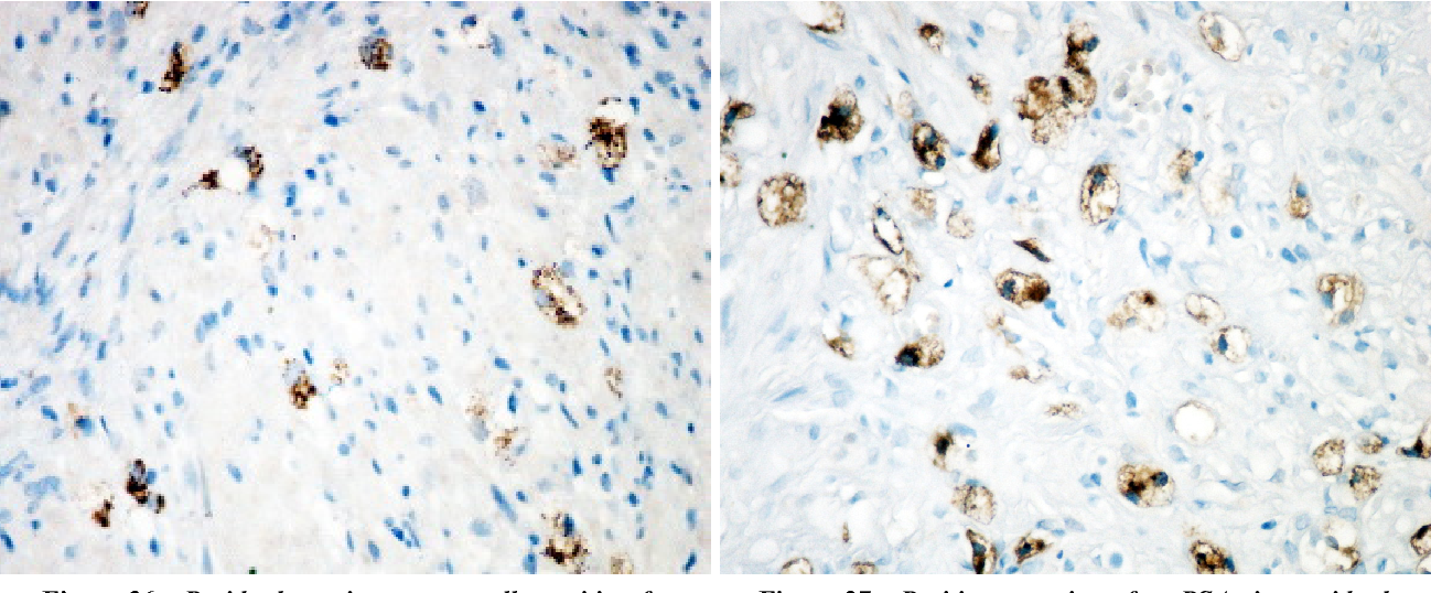 Figure 36 – Residual carcinomatous cells positive for AMACR in a case of hormonally treated prostatic adenocarcinoma. Anti-AMACR, EnVision system, ×400.