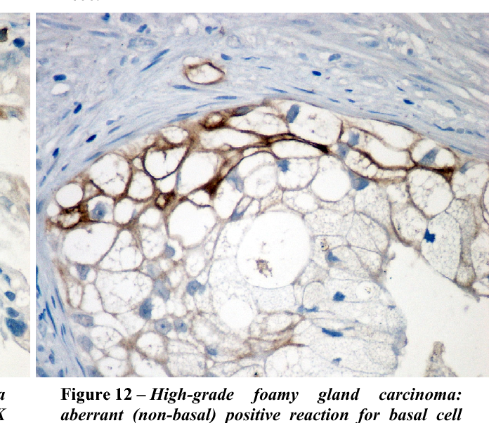 Figure 12 – High-grade foamy gland carcinoma: aberrant (non-basal) positive reaction for basal cell marker. Anti-HMWCK (34βE12), EnVision system, DAB, ×400.