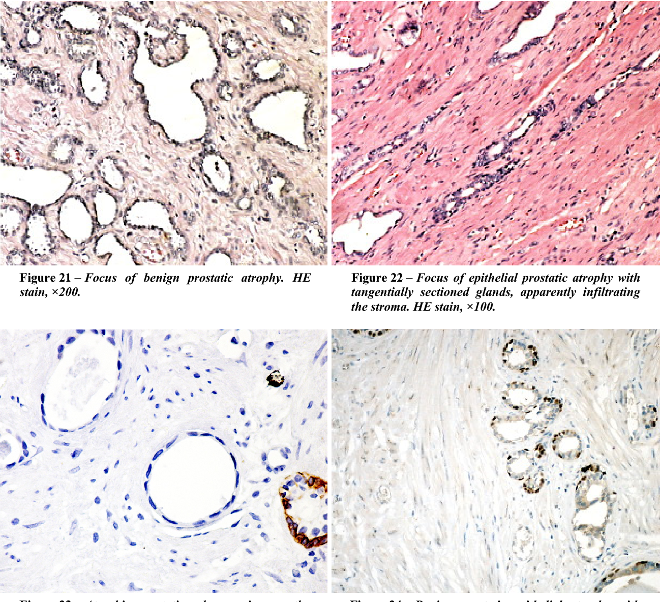 Figure 22 – Focus of epithelial prostatic atrophy with tangentially sectioned glands, apparently infiltrating the stroma. HE stain, ×100.