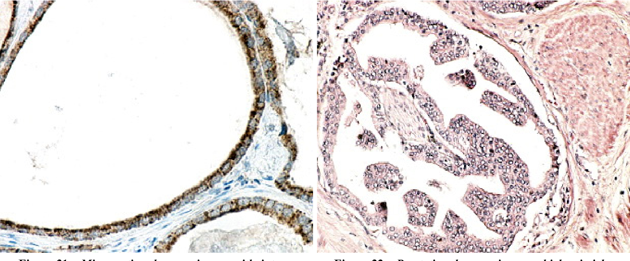 Figure 31 – Microcystic adenocarcinoma with intense positive reaction for AMACR. Anti-AMACR, EnVision system, DAB, ×400.