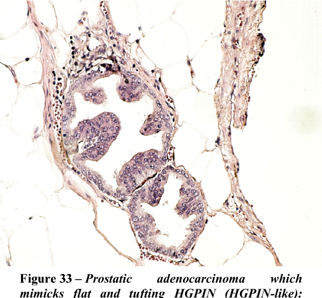 Figure 33 – Prostatic adenocarcinoma which mimicks flat and tufting HGPIN (HGPIN-like): extraprostatic extension. HE stain, ×200.