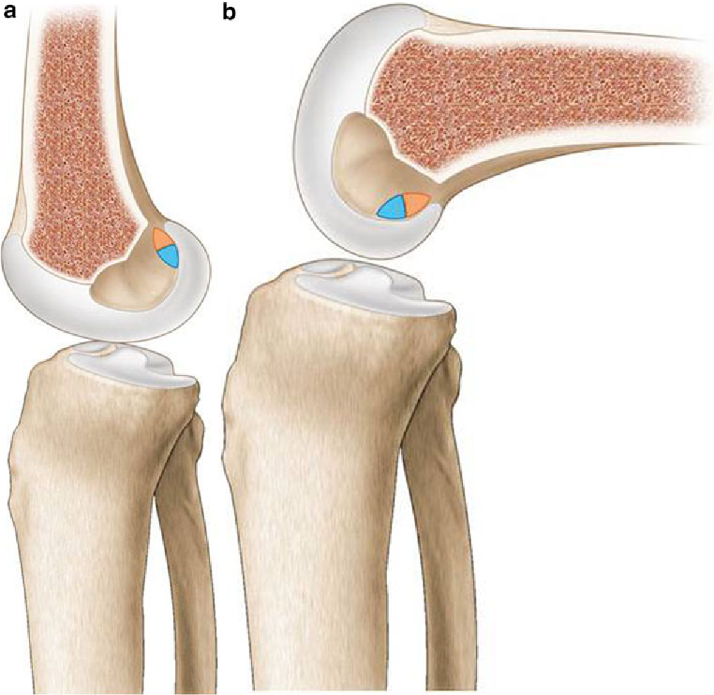 Current knowledge in the anatomy of the human anterior cruciate ...