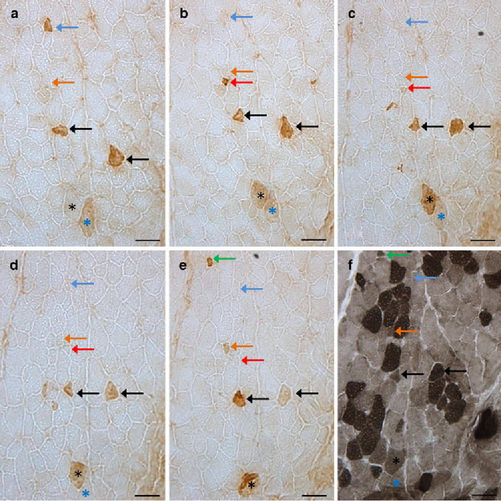 Fig. 3 Immunohistochemical staining for embryonic myosin heavy chain (MyHC-emb) isoform in transversal serial sections of porcine M. semitendinosus, cut with an interval of 110 m (a–e), and staining for myoWbrillar ATPase (f), cut with a distance of 10 m to e. Bars 20 m. Blue arrows Wbre positively stained in a lost its staining, but could be identiWed throughout all sections. Red arrows positively stained Wbre appearing in b lost its staining, but could be identiWed to e. Black arrows normal-sized positively stained Wbres observed in all sections, one of them fading in e. Green arrows positively stained Wbre appeared in e. Orange arrows Wbre existing in all sections showed MyHC-emb expression in e. Black asterisk large Wbre with increasing staining intensity from a to c. Blue asterisk large Wbre with decreasing staining intensity from a to d