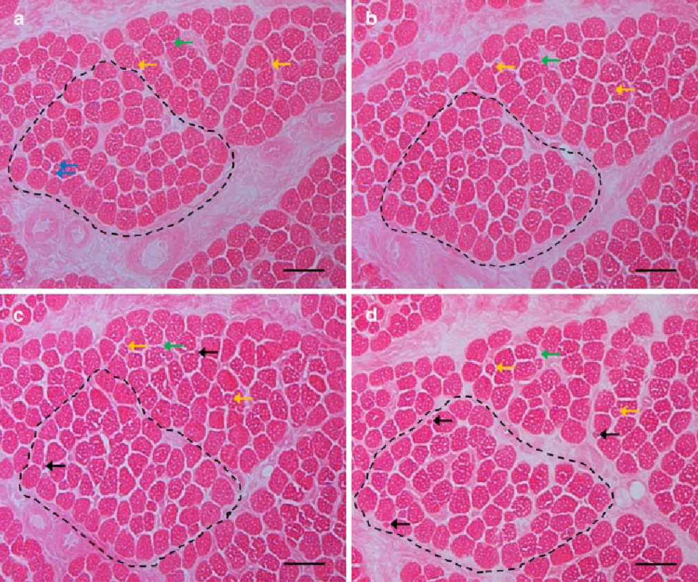 Fig. 4 Eosin staining of transversal serial sections of porcine M. semitendinosus, cut with an interval of 110 m (a–d). Bars 20 m. Black arrows Wbres not apparent in the respective previous section. Blue arrows two very small Wbres present in a, but then disappearing. Green arrows small Wbre present in a and b, but then disappearing. Yellow arrows Wbres present through a–d. MyoWbre number within the bundle (dashed line) is n = 63 in a, n = 61 in b, n = 62 in c, and n = 63 in d