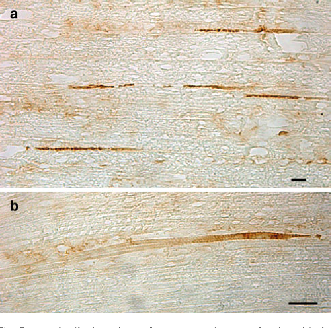 Fig. 5 Longitudinal sections of M. semitendinosus of 7-day-old piglets stained for embryonic myosin heavy chain (MyHC-emb). a Stained myoWbres of very small size scattered among the normalsized myoWbres. b Normal-sized myoWbre where only the termination is positively stained. Bars 20 m